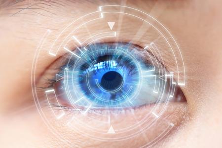 cirugía laser de miopía Málaga